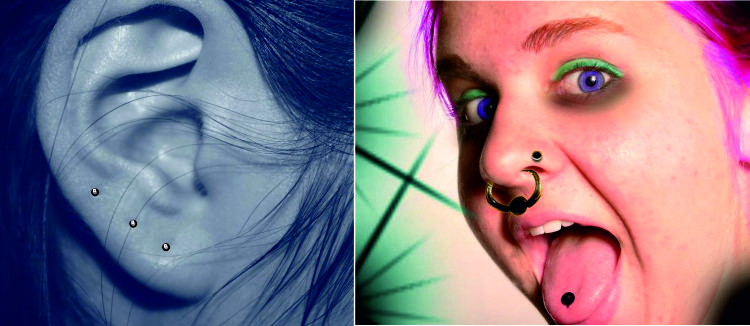 Prepichnutie ucha či inej časti tela môže liečiť aj ublížiť