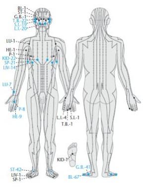 Akupunktúra, priebeh meridiánov podla tradičných predstáv.